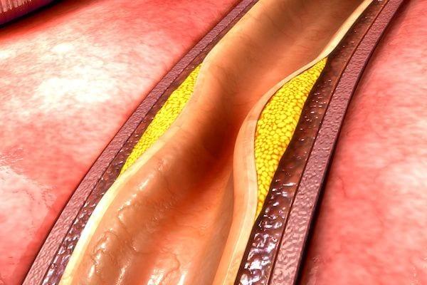 Cardiologo en San Luis Potosi Dr Josue Alejandro Silva Especialista en Hipertension Arterial Sistemica v001 compressor