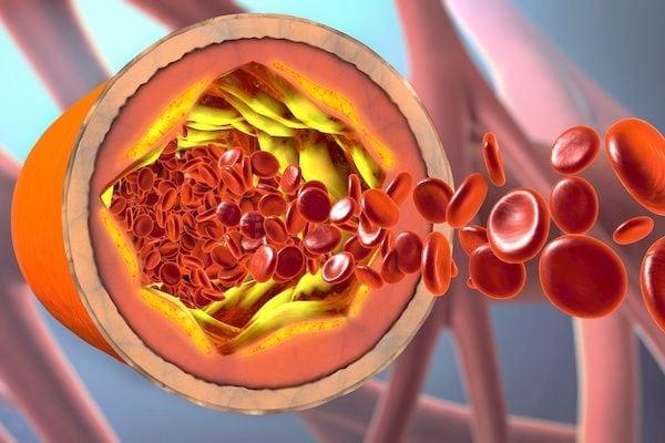 Cardiologo en San Luis Potosi Dr Josue Alejandro Silva Especialista en Hipertension Arterial Sistemica v002 compressor