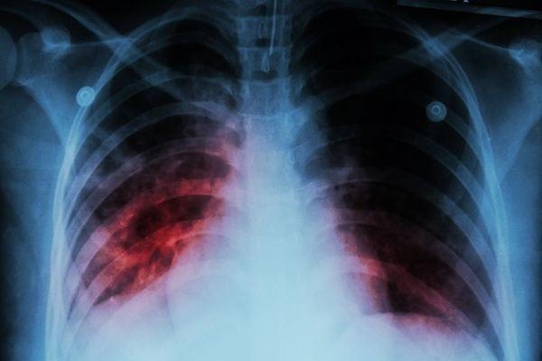 Cardiologo en San Luis Potosi Dr Josue Alejandro Silva Especialista en Tromboembolia Pulmonar v001 compressor