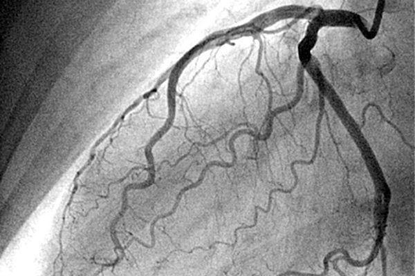 Dr Josue Alejandro Silva Ortiz Cirujano Cardiologo en San Luis Potosi Especialista en Angiografia Coronaria v001 compressor