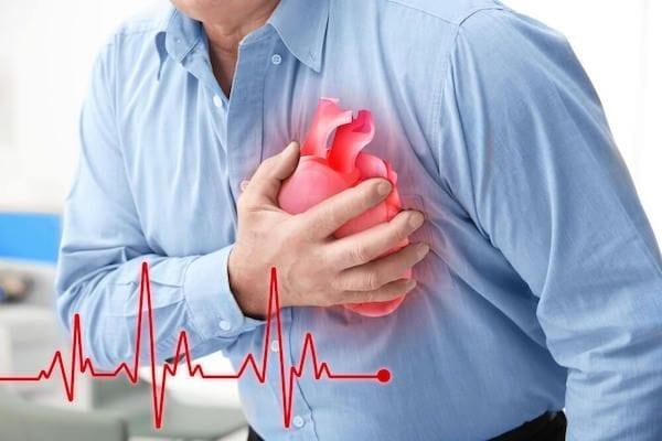 Dr Josue Alejandro Silva Ortiz Cirujano Cardiologo en San Luis Potosi Especialista en Arritmia Cardiaca v002 compressor