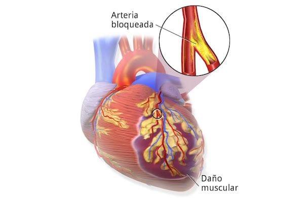 Dr Josue Alejandro Silva Ortiz Cirujano Cardiologo en San Luis Potosi Especialista en Cardiopatia Isquemica v001 compressor